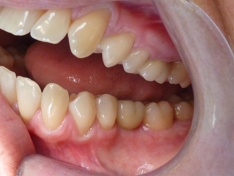 Couronne dentaire molaire en haut, couronne dentaire molaire sur implant en bas - Après