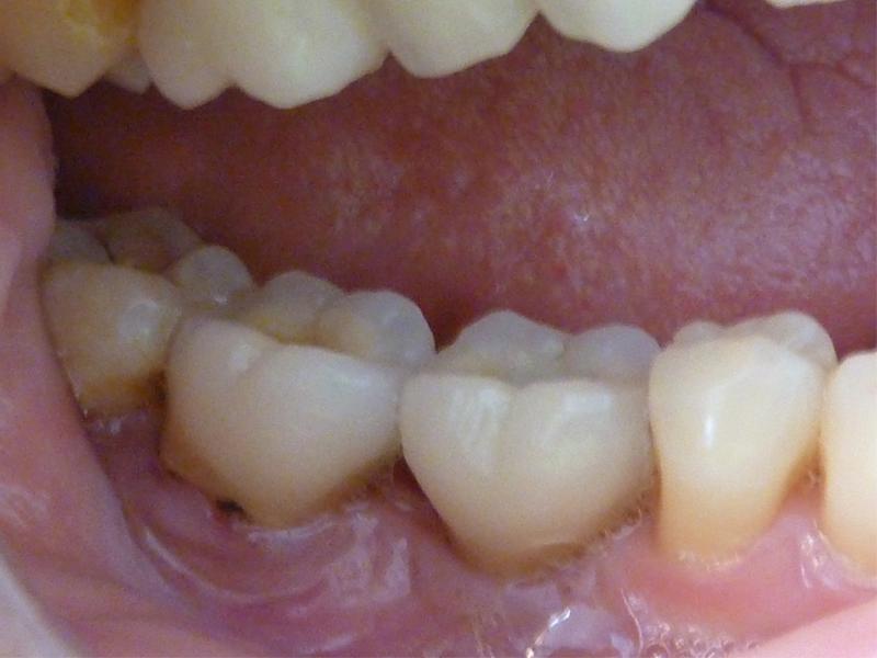 Couronne molaire sur dent et couronne molaire sur implant - Après