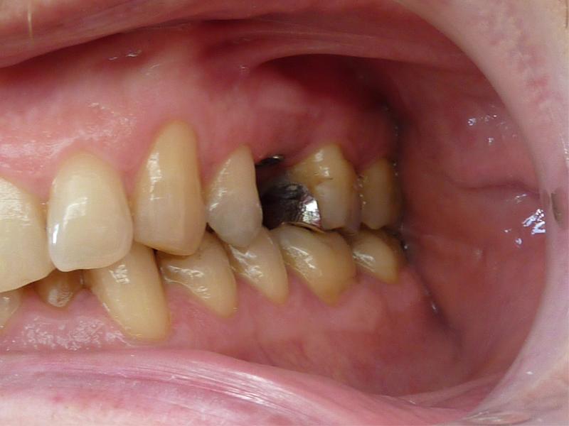 Couronne sur implant en place d'une prémolaire - Avant