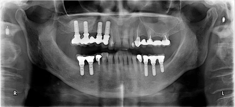 Panoramique dentaire après pose d'implants et réhabilitation prothétique