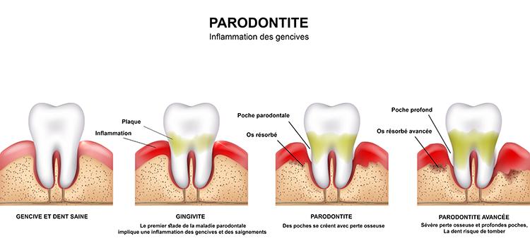 Parodontologie à Le Bouscat