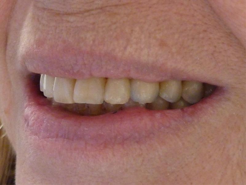 Pose d'implants et réhabilitation prothétique - Après