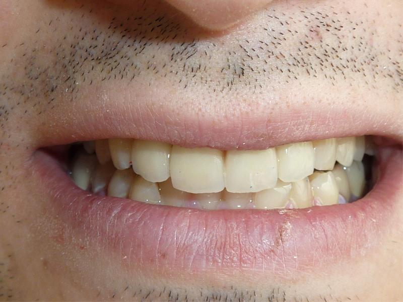 Réalisation de facettes sur les 4 incisives maxillaire - Après