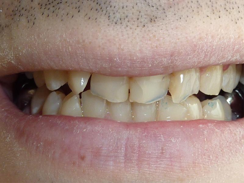 Réalisation de facettes sur les 4 incisives maxillaire - Avant