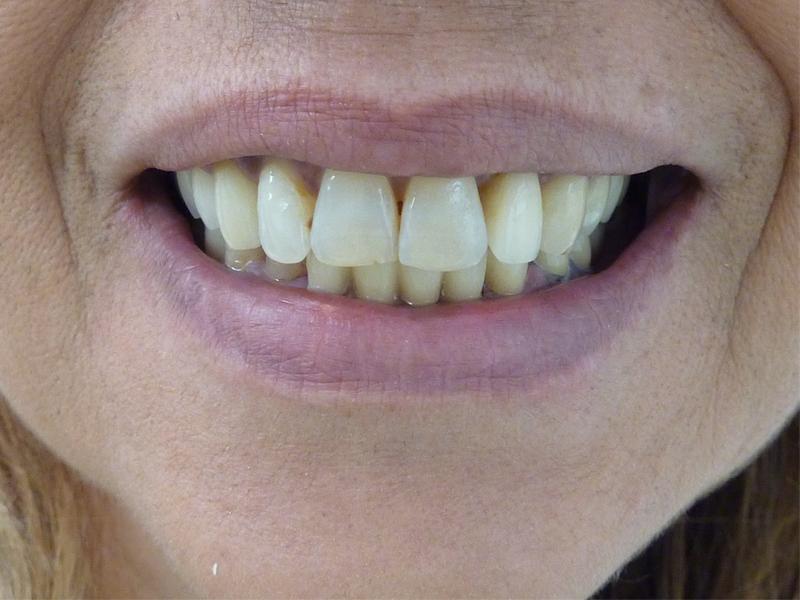 Réhabilitation du sourire - Après