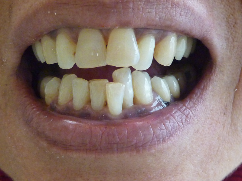 Réhabilitation du sourire - Avant